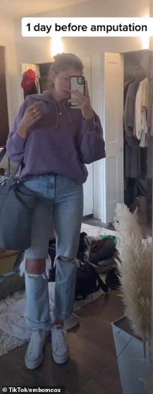 In her viral video, she films herself for a week, five days, three days, a day, and three hours before the amputation, sticking her leg out each time.