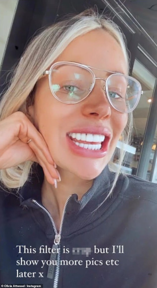 Pearly whites: This comes as Olivia showed her new teeth to her 1.9 million Instagram followers on Saturday