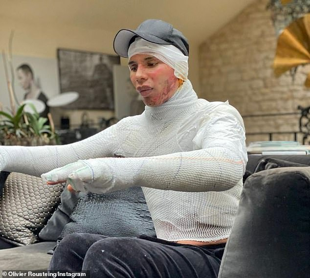 Painful:Olivier Rousteing, 36, has revealed that he suffered severe face and body burns after a fireplace exploded in his Paris home last year