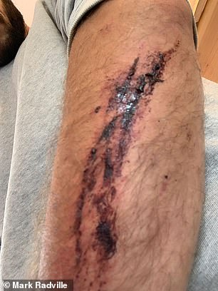 Mr Radville suffered a serious cut to his left forearm when he was rammed off his bicycle. He said the incident has scarred him