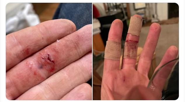 Ouch!The singer, 48, posted snaps to Twitter showing off a gnarly wound on his bloodied hand - revealing how the runaway pooch mauled him