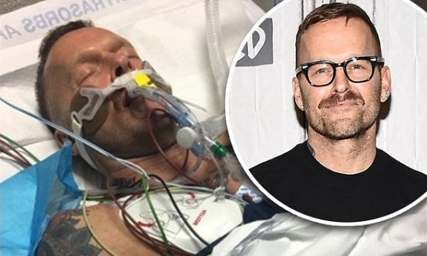 Bob Harper posts pic of himself in coma Daily Mail Online