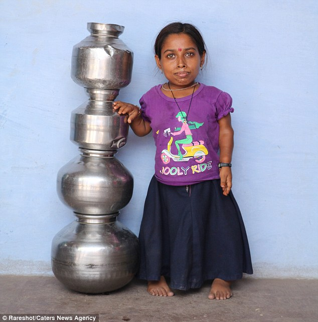 Santosh Kumari, from a remote village in Madhya Pradesh, India, is smaller than a four-year-old because of her extreme case of dwarfism