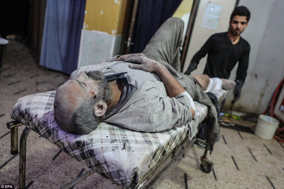 Este hombre fue sacado de los escombros y llevado al hospital en Douma para recibir tratamiento luego de los ataques más recientes.
