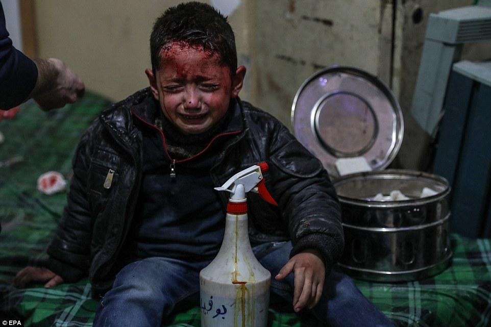 Diez civiles han muerto y docenas han resultado heridos en los últimos bombardeos de las fuerzas leales al líder sirio Bashar al-Assad en Douma, Ghouta Oriental, donde este niño recibe tratamiento por sus heridas durante la noche