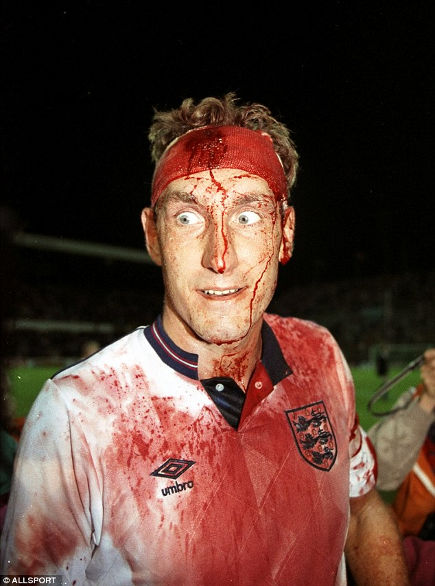 A famous picture of a bloodied Butcher during England's 1989 World Cup qualifier in Sweden