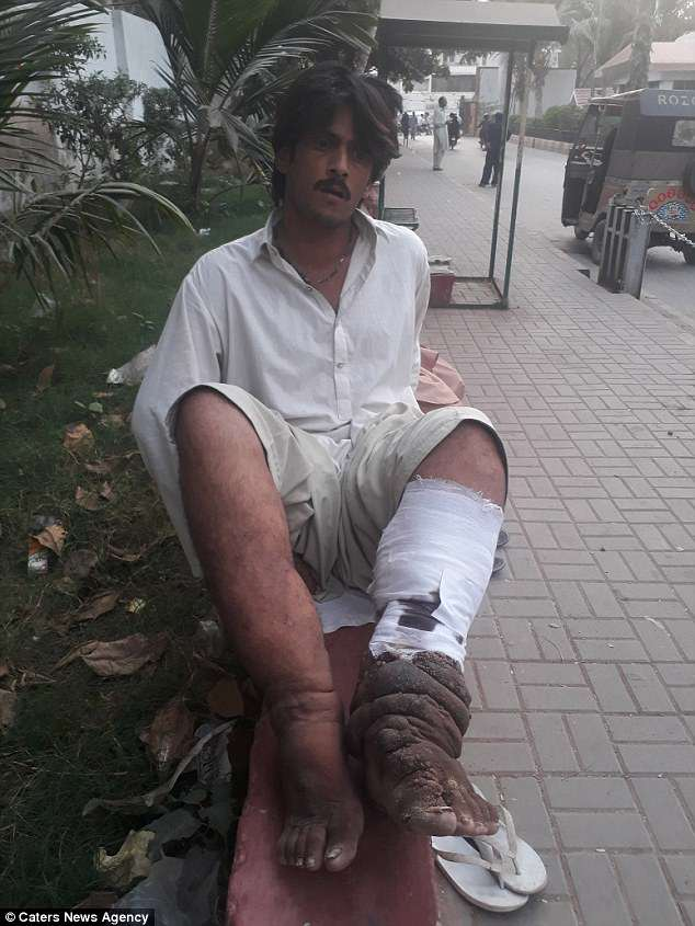 Mr Ali has such bad elephantiasis in his legs that he can no longer work but his family cannot afford the surgery he needs