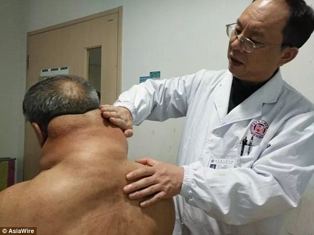 Dr Xiao (pictured) said Mr Tan suffers from Madelung's Disease, a rare disease characterised by a benign growth of fatty deposits around one's neck and upper body