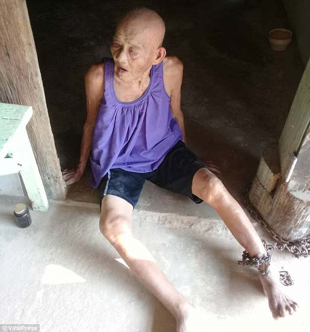 Rescued: 'Grandma Chuam' had been chained to the doorway of her home in home in Chachoengsao, Thailand, by her own step-sister to stop her from wandering off