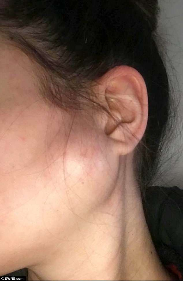 Ms Geraghty was diagnosed a fortnight later with a cancer of the glands - a high grade metastatic Mucoepidermoid Carcinoma (pictured: the lump)