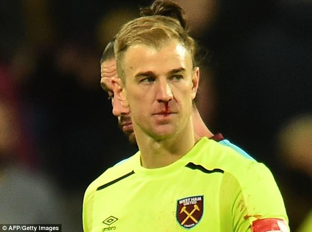 Joe Hart had to stand miserably afterwards as the Stoke fans chanted 'England's No 4' at him