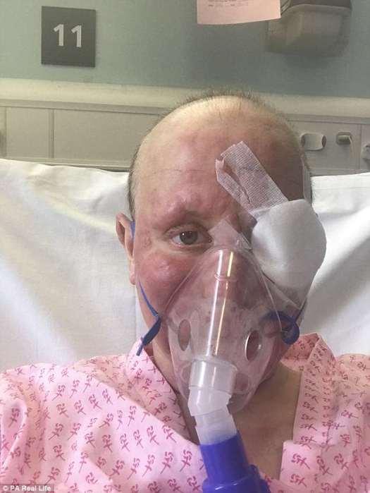La Sra. Debling se reunió con un especialista de la piel en Basingstoke y North Hampshire Hospital y le hicieron una biopsia de piel en marzo de 2016. Convencida de que estaba sufriendo de dermatitis, un tipo de eccema, trató de no preocuparse (en el hospital sometido a tratamiento)