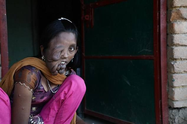 Salibunnisa's life-threatening facial tumour means she is cruelly branded a 'witch' by locals