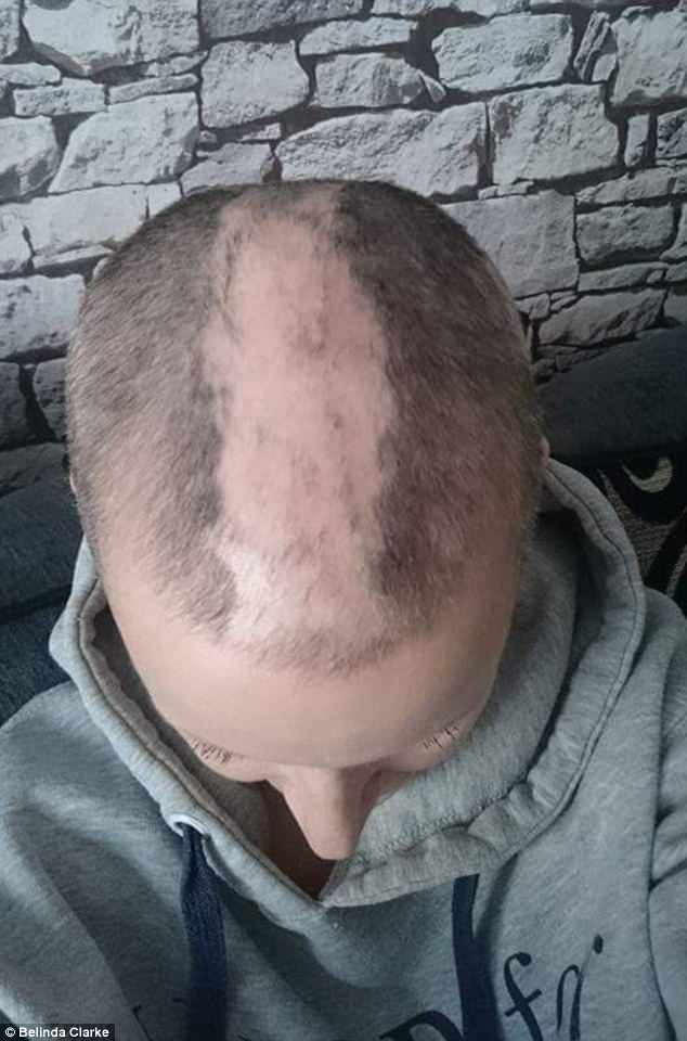 Belinda used the shampoo and conditioner three times a week for six months, and saw her hair start to grow back