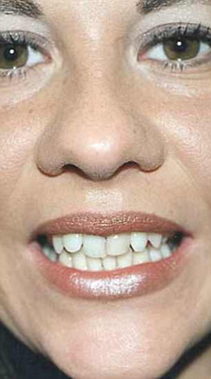 Nina Tetra, 42, decided to have her veneers replaced last year