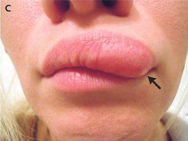 She visited a doctor after her lip ballooned approximately two weeks after she noticed the first small lump beneath her left eye