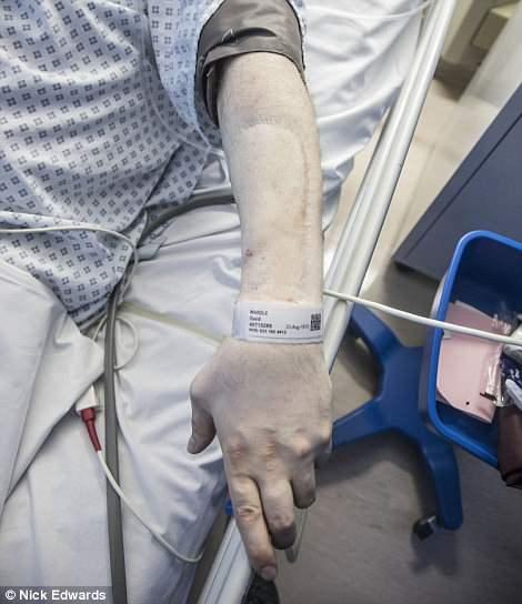 Insolite: Né sans pénis, il va avoir son premier rapport sexuel à 44 ans (photos)