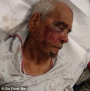 https://i0.wp.com/i.dailymail.co.uk/i/newpix/2018/07/09/15/4E0F7D9B00000578-5933843-Rodolfo_Rodriguez_was_attacked_by_a_woman_and_four_men_on_the_Fo-a-5_1531147671110.jpg?w=1060&ssl=1