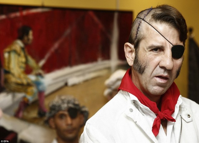 Bullfighter Juan Jose Padilla poses during his farewell tribute at a hotel in Pamplona. His still-stitched head is clearly visible in this photo, after he was scalped by a bull