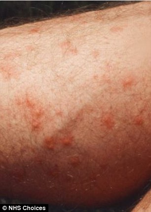 When the chigger bites, it inserts its feeding structures and mouth parts into the skin