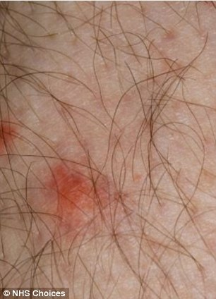 Female mosquitoes bite humans and other mammals because they need blood in their diet to be able to reproduce
