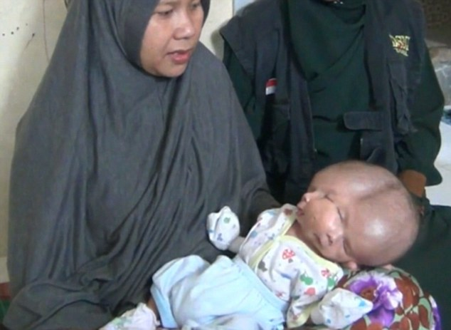 Mother Ernilasari (left) did not feel anything was wrong during her pregnancy, and doctors did not pick up on the problem until after Gilang was born – despite doing three ultrasound scans