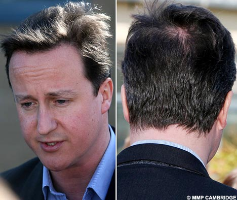 Hair Scare Camerons Locks Thin As Bald Patch Is Spotted