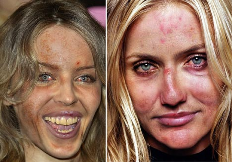 Spot horror How other celebrities would look with Amys