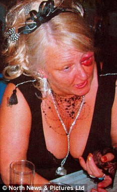 Bride walks down aisle with huge black eye  after punchup with the caterer  Daily Mail Online