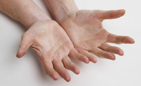 Internet study confirms: finger length is linked with handedness!