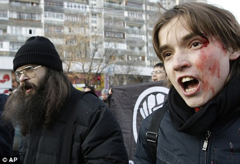 A bloodied protester marches in Moscow with the United Civil Front