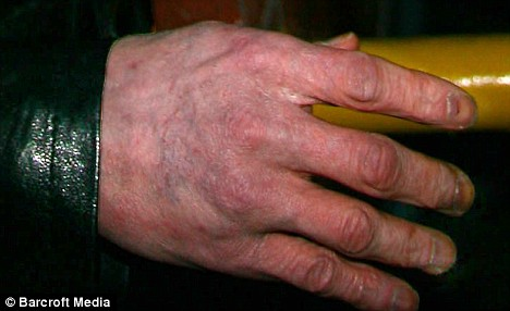 Shocking impression of the hand of Michael - he now also may have skin cancer.