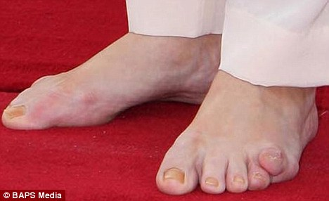 This little piggy... The Prime Minister's wife exposed a rather unsightly problem with the toes on her left foot when she attended a conference dubbed Celebrating Women: Past, Present and Future