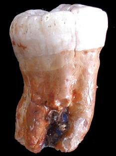 Dental data: A neanderthal's tooth has shown scientists that they ate a lot more vegetables than originally thought