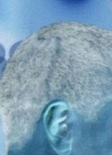 Esta imagem pretende mostrar a cicatriz que vai do topo da cabeça do presidente para atrás da orelha direita