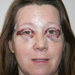 How Much Does A Chair Cost Dining Room Covers For Sale Upper And Lower Blepharoplasty: The Latest Must-have Surgery | Daily Mail Online