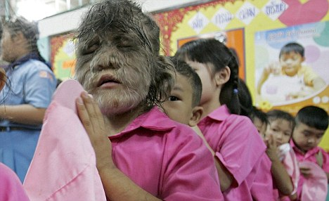 The 'World's Hairiest Girl' Shaved Her Face And Married The Love Of Her Life