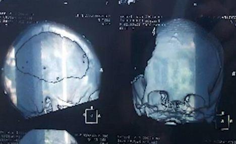 Esta radiografía muestra la magnitud de los daños al cráneo de Taisia.  Perdió gran parte del hemisferio izquierdo de su cerebro