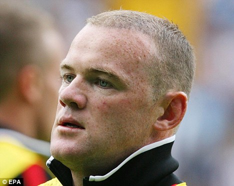sports update hehehe wayne rooney going grey after 30 000 hair transplant