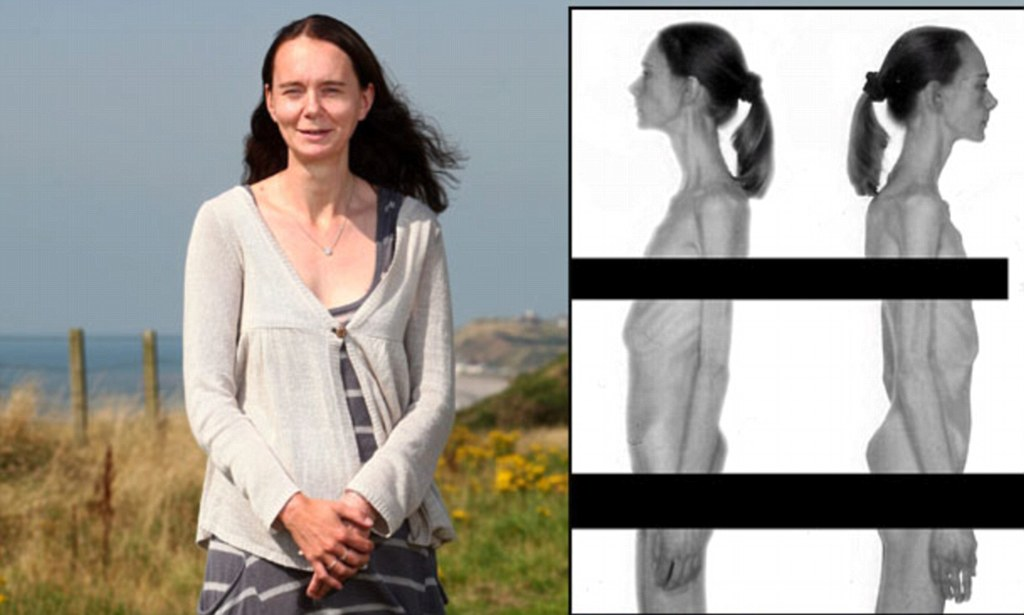 Shocking Pictures Show How One Woman Succumbed To Anorexia