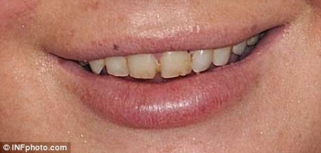 Before and after: Lindsay pictured with white gnashers in 2009 (left) and the difference between the two now (right)