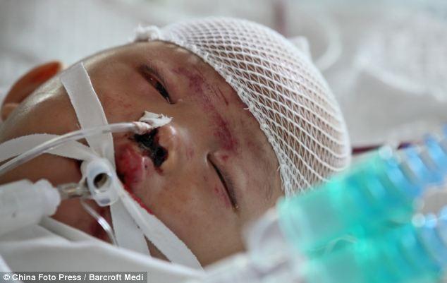 Ignorado: En un incidente similar la semana anterior, Yue Yue se quedó con lesiones cerebrales horrible y nunca se recuperó