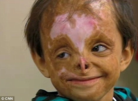 Little miracle: Two years ago, Shakira, whose name means thankful, was discovered badly burned in a bin following a drone attack in Pakistan