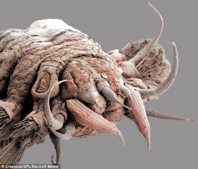 Gambar menangkap secara rinci luar biasa bagaimana cacing skala yang berbeda telah berevolusi