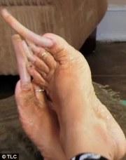 woman addicted growing toenails