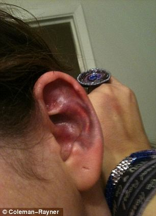 Infection site: Ms Perez felt when the spider bit her ear, and was  not given any serious treatment immediately
