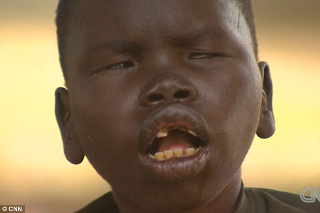 Some children with nodding disease are abandoned by their families because they are too difficult to look after