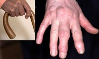 Sausage fingers to knobbly knuckles: The causes of hand ...