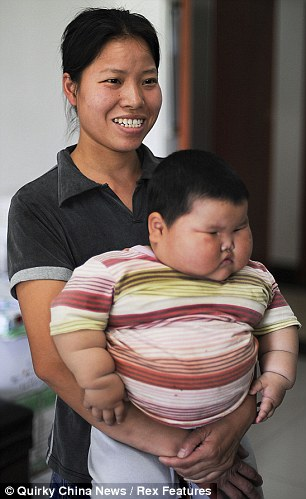 Fattest Baby In The World : fattest, world, Obese, China:, Parents', Desperate, Doctors, Their, Overweight, Daughter, Daily, Online