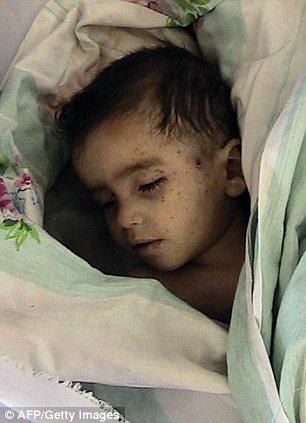 Dead child in Syria